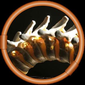 Atlas Orthogonal Chiropractor in Seattle Washington