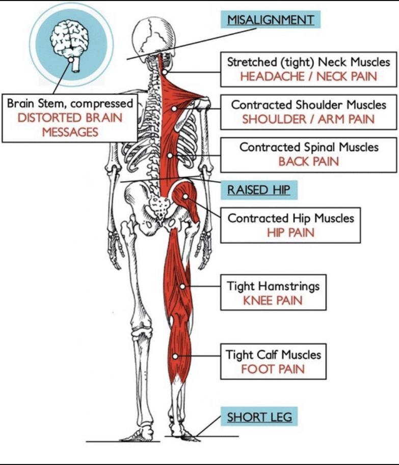 Atlas out & short leg